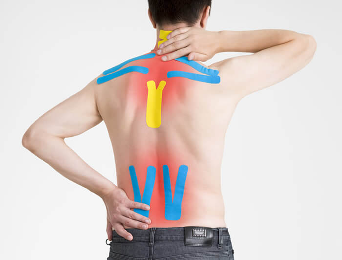 Alex Szabo Osteopathy - Kinesiology Taping